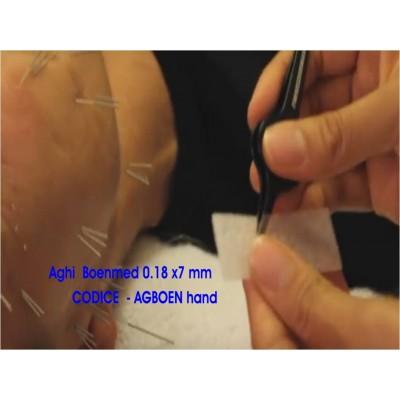 Las agujas de acupuntura en la mano o Auridetox