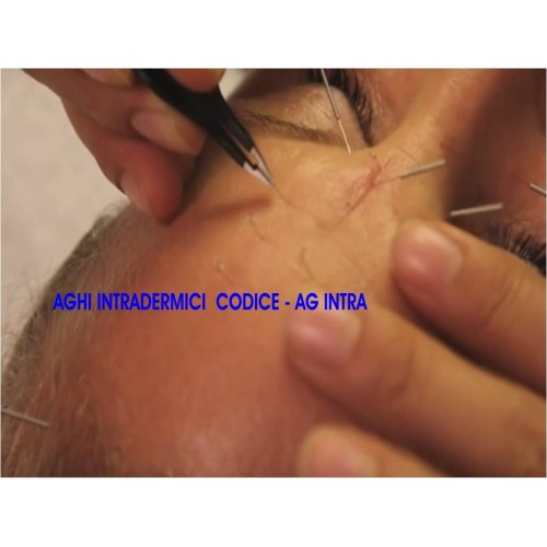 Aghi per agopuntura della mano o Auridetox