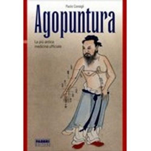 Agopunti